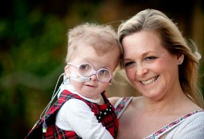 Ele & Elis Blog: Youngerst Cancer Patient In Britian 11 days old, s...