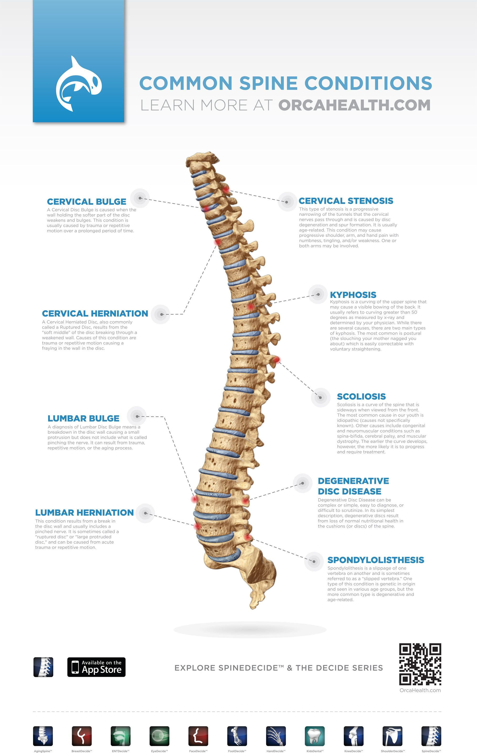 Orca Health SpineDecide Poster of Common Spine Conditions