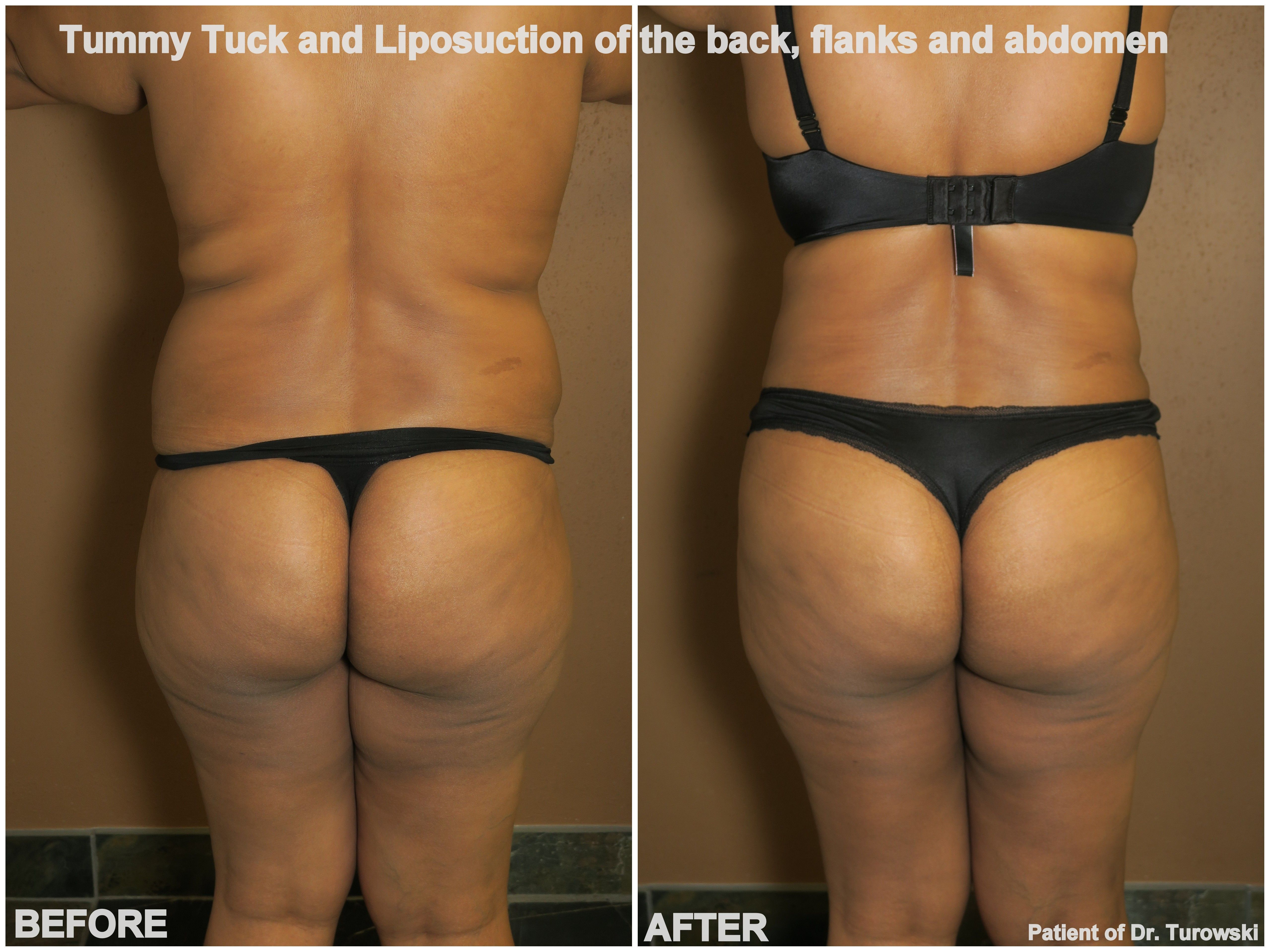 Pin by Dr  Gregory Turowski on Tummy Tuck Chicago   Tummy tucks