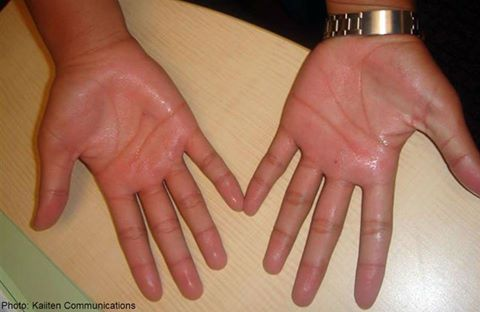 Palmar hyperhidrosis is a condition that causes excessive sweating of the hands.  Know more : http://goo.gl/GEjW8w