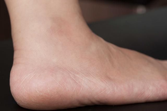 Home Remedies For Extremely Dry Feet Treating Dry Skin Dry Skin Body Dry Skin Routine