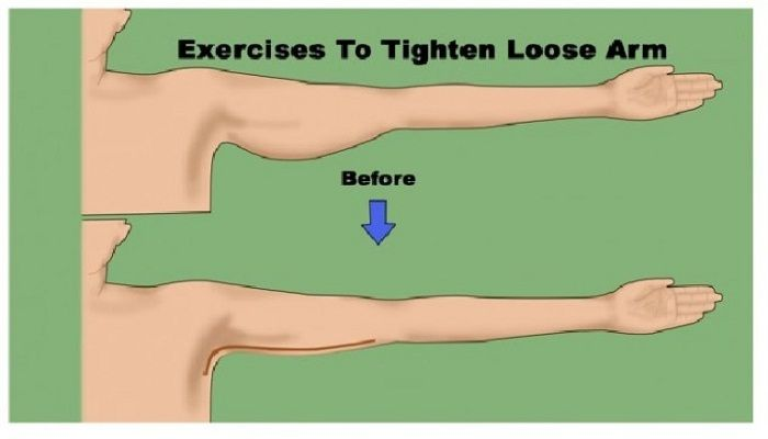 Pay a Specific Attention to Tightening Loose Arms - 5