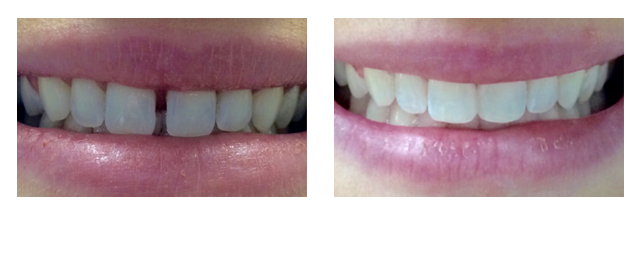 fix the gap between your front teeth in one dental visit