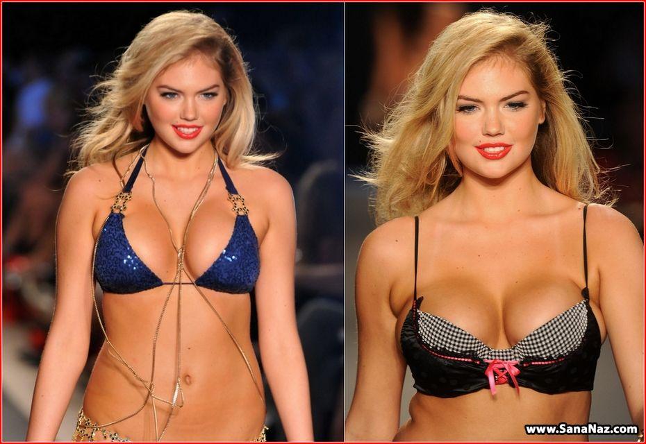 Kate upton breast augmentation