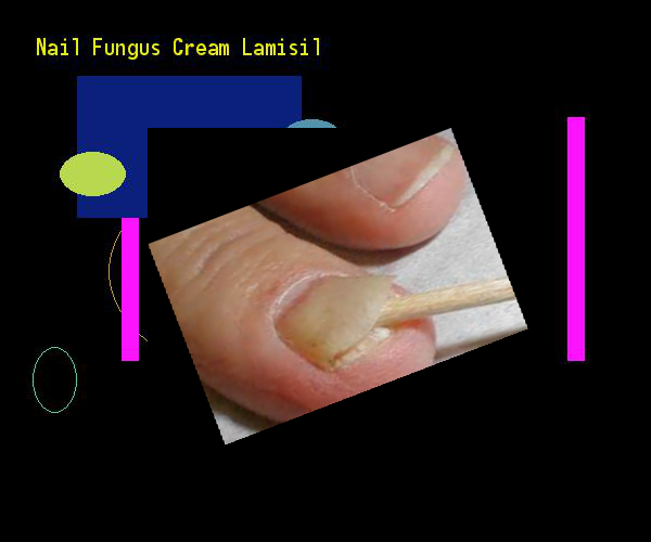 Nail Fungus Cream Lamisil Remedy You Have Nothing To Lose Visit Site Now