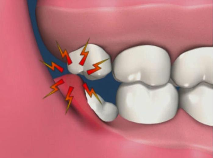 Dental Tooth Extraction Near me   Random knowledge   Wisdom