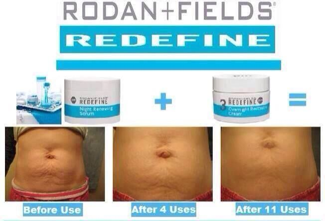 Have Stretch Marks After Babies Rodan And Fields Amp Roller Can