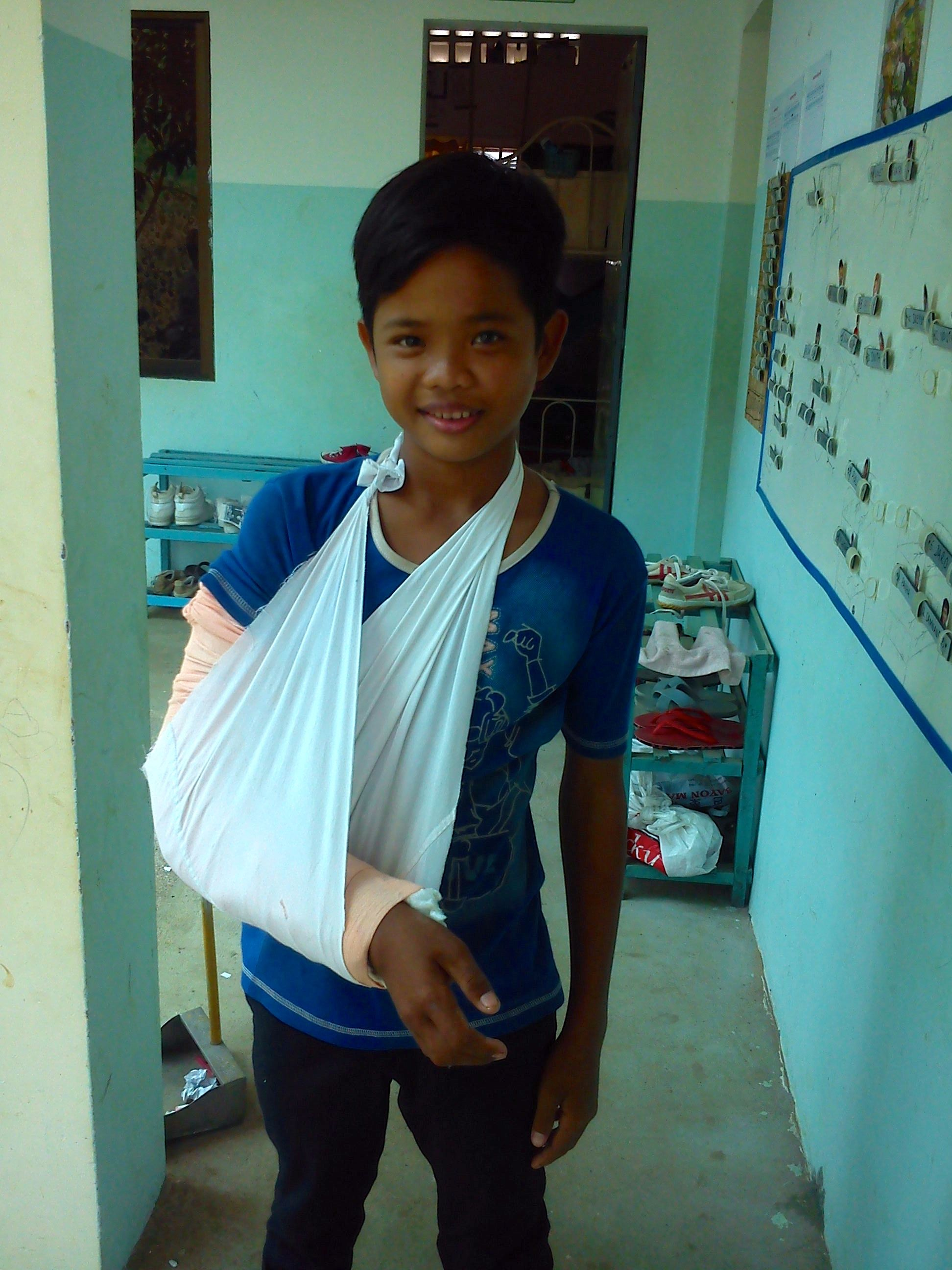 There are very few good hospitals in Cambodia. When accidents or illness happen, often the first solutions that come to orphanages is to bring the kids to a local clinic. One of our boys fell off his bed while play-fighting with his friends. The orphanage staff took him to a locale clinic at first. The following day, was the boy to the best hospital in country. The boy has indeed gotten an operation, and stayed 12 days in the Kanta Bopha facilities. The procedure went well.