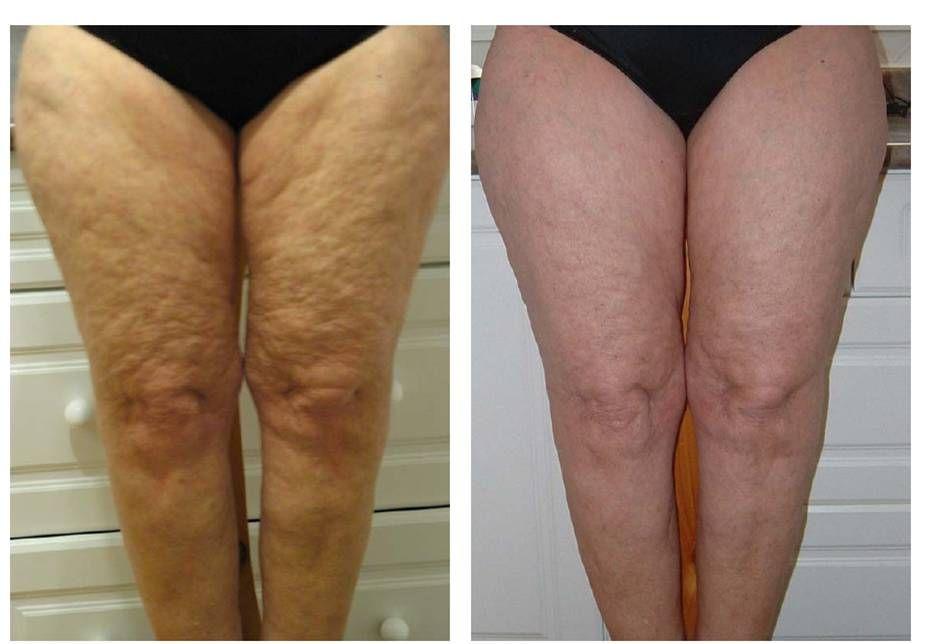Galvanic Body Spa Cellulite