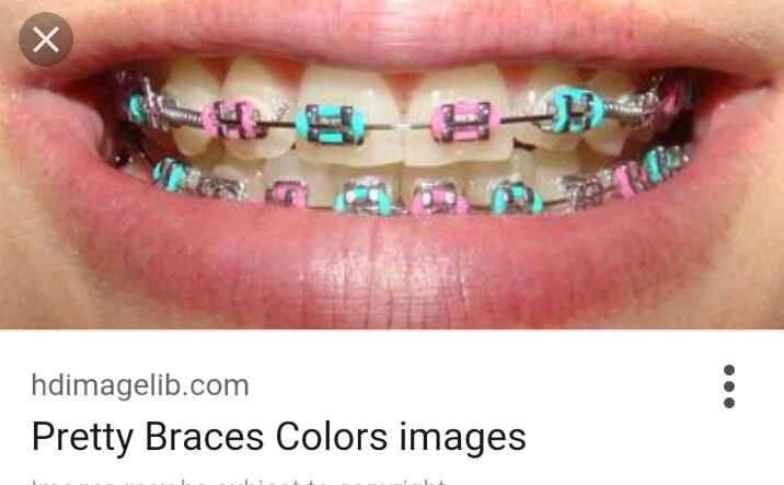 Really pretty blue and pink braces:) | Braces💙 | Pink