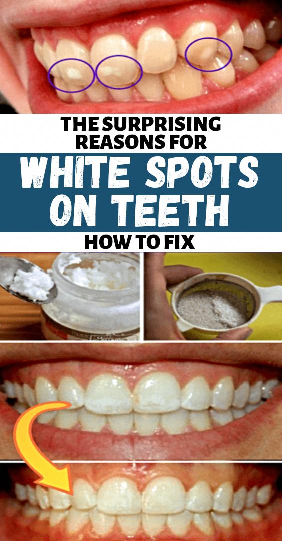 Weiße Flecken auf den Zähnen führen dazu, dass Menschen sich ihrer …   – Health Advice