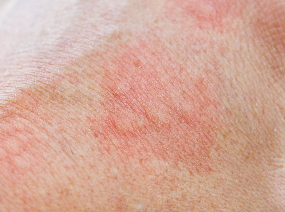 Rash from shingles | Melanoma | Home remedies for allergies