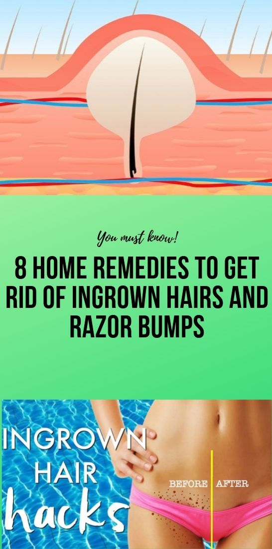 Photo of 8 Home Remedies to Get Rid of Ingrown Hairs and Razor Bumps