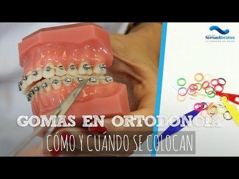 Usos Y Funciones De Las Ligas Elasticas En Los Brackets Youtube Ortodoncia Ligas Para Brackets Brackets Dentales