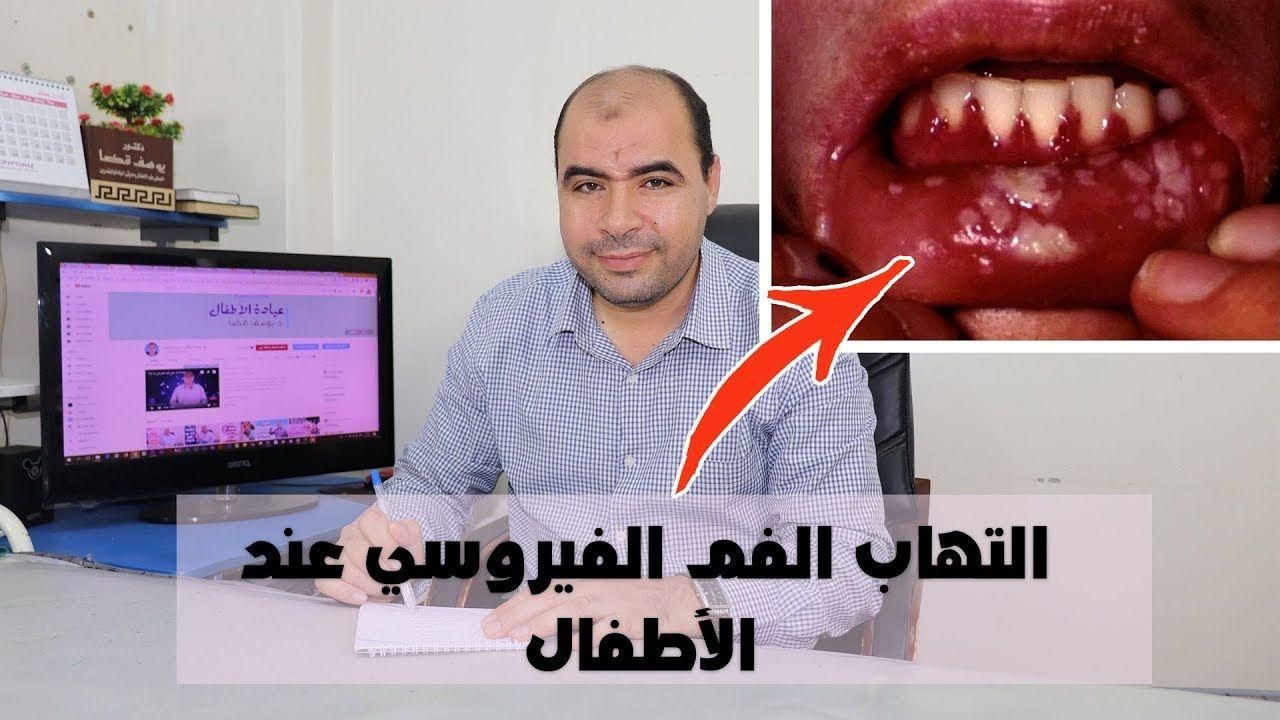 التهاب الفم الفيروسي عند الاطفال وعلاجه Baby Development Parenting Hacks Parenting