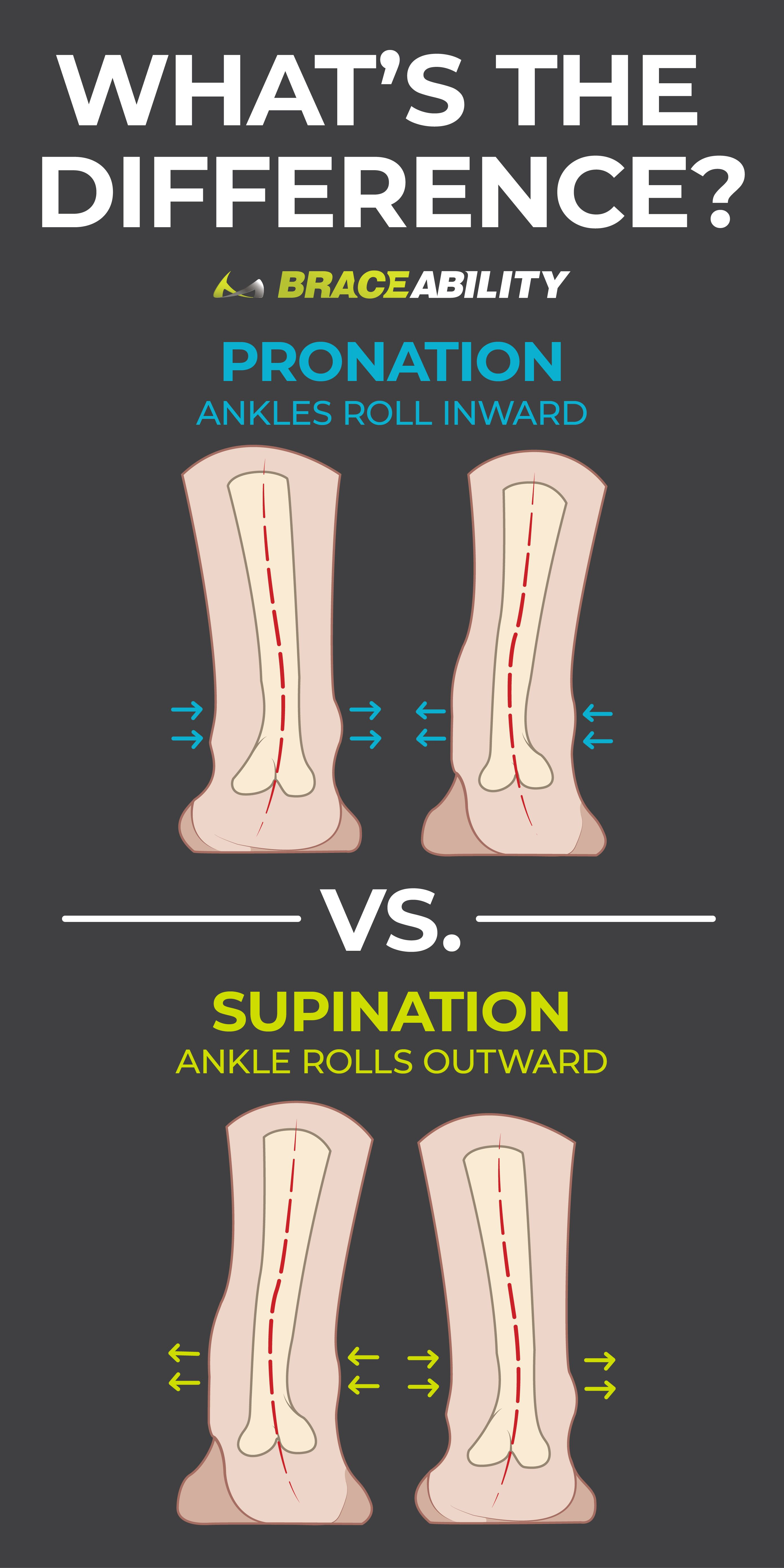 e71a172049 Wondering about the difference between pronation vs. supination? Pronation  occurs when your arch flattens on your foot strike, causing your ankle to  roll ...