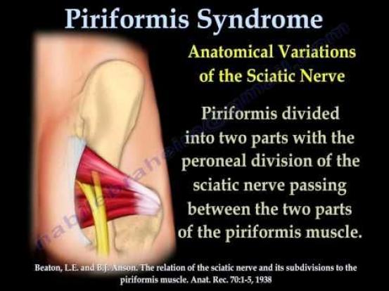 Piriformis Syndrome More exercises video style. Do them ...