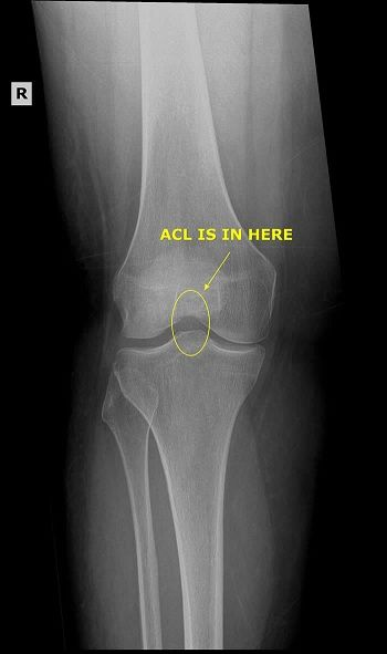 Torn acl mcl