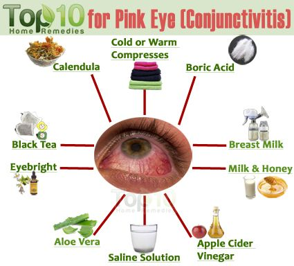 Natural Cure For Pink Eye Conjunctivitis