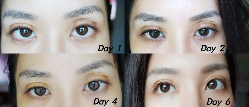e741e8471c8db016e614595958400792 - How To Get Rid Of Double Eyelids Without Surgery