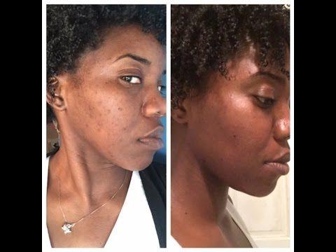 e746e6d2ffe324543f0e967b20c807ca - How To Get Rid Of Acne Scars On Brown Skin