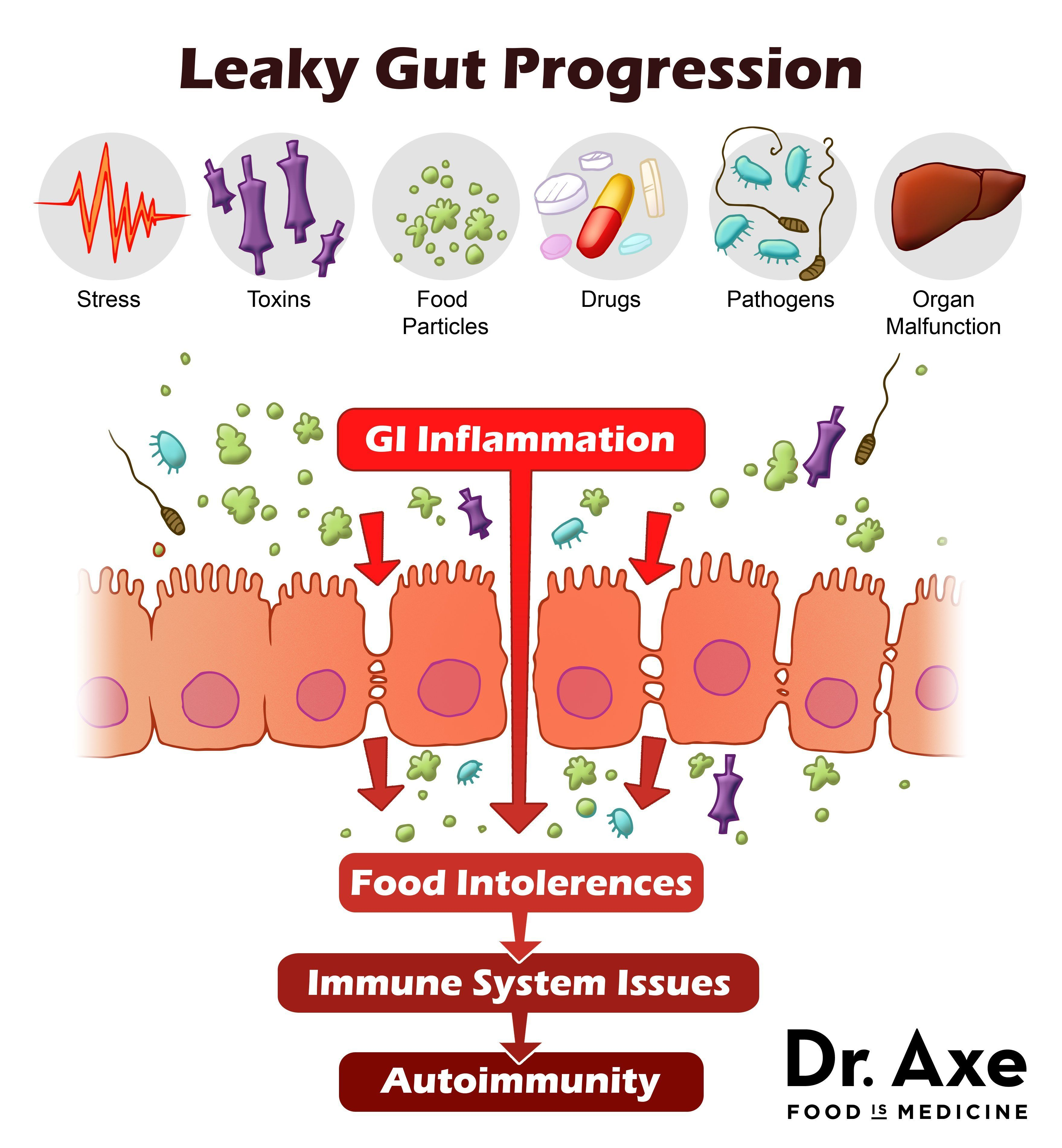 7 Signs And Symptoms You Have Leaky Gut Draxe Com Heal Leaky Gut Leaky Gut Leaky Gut Syndrome