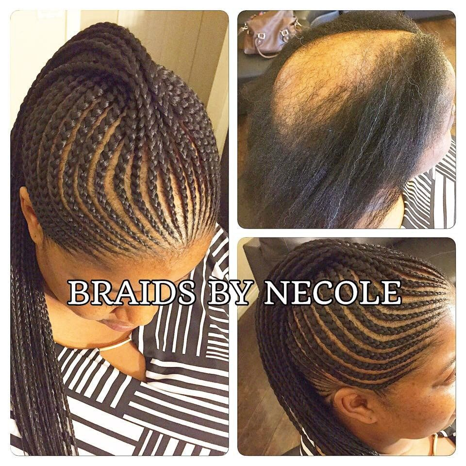 14 Extraordinary Alopecia Camouflage Cornrows By Braids By Necole Hair Styles Kids Braided Hairstyles Alopecia Hairstyles