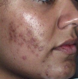 How To Remove Injury Scars From Face Naturally