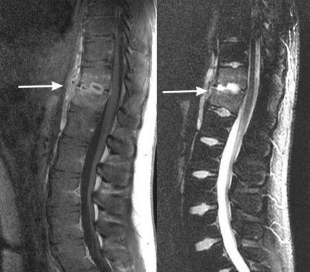 Osteomyelitis vs disk space infection (discitis) MRI. La Unidad ...