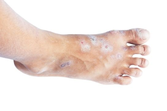 Colloidal Silver Beats Hand, Foot and Mouth Disease (October