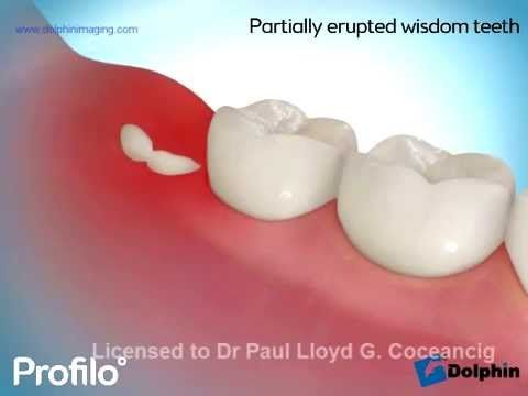 how to tell if wisdom tooth impacted