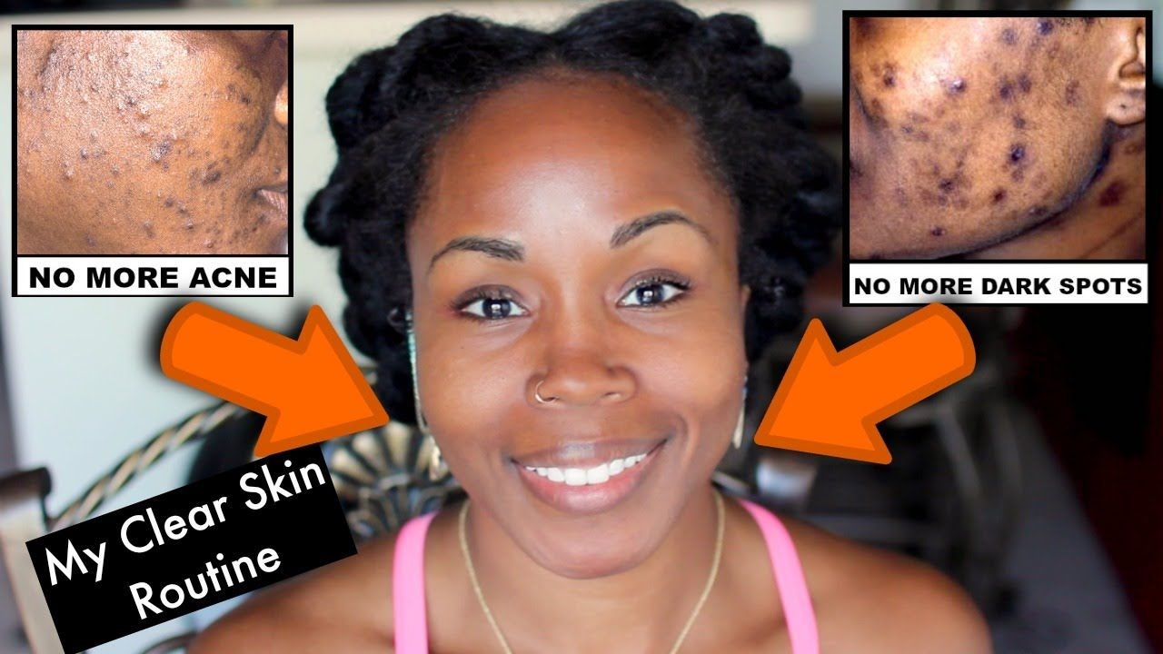 How To Get Rid Of Acne Scars On Brown Skin