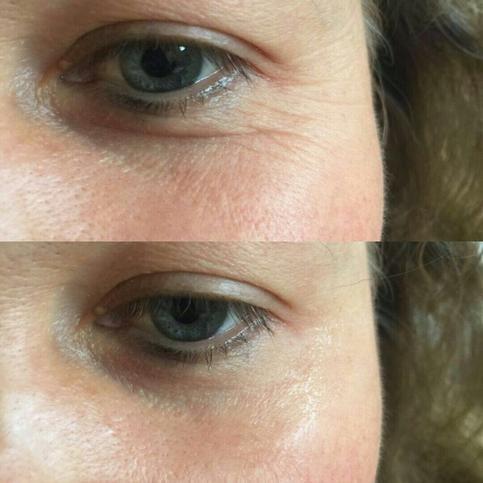 Falten Unter Den Augen Entfernen Falten Unter Den Augen Makellose Haut Anti Falten Creme