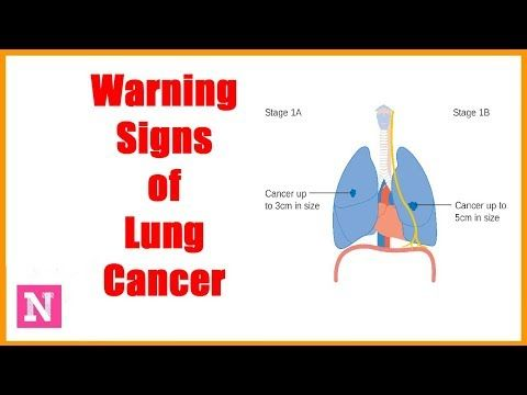 10 Common Warning Signs of Lung Cancer - WATCH THE VIDEO *** signs of lung  cancer *** 10 Common Warning Signs of Lung Cancer | Symptoms of Lung Cancer  ...