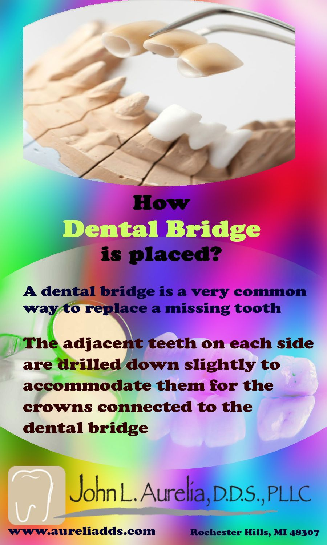 Toothpasteholdersuperficial Tooth Extraction Healing Almond Milk Teethwhiteningkits Dentalcrown Dental Bridge Dental Bridge Cost Dental