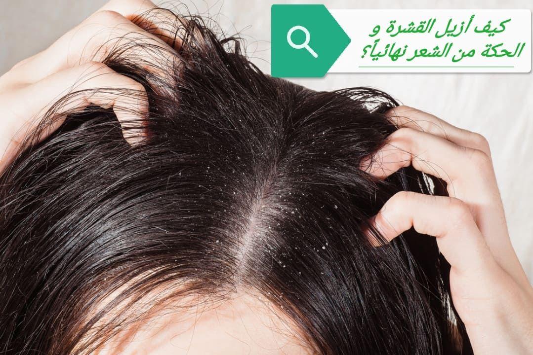 قشرة الرأس تعد من أكثر المشكلات المزعجة بالنسبة للكثير من الناس فكيف أزيل القشرة و الحكة من الشعر نهائيا هذا ما سنت Hair Dandruff Dandruff Treatment Dandruff