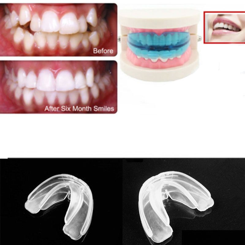 how to straighten teeth without braces at home in hindi