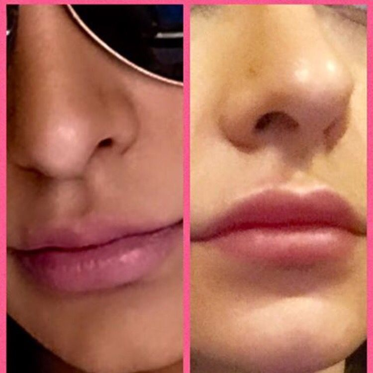 Lip augmentation done with 1 syringe of Juvederm  Before and After