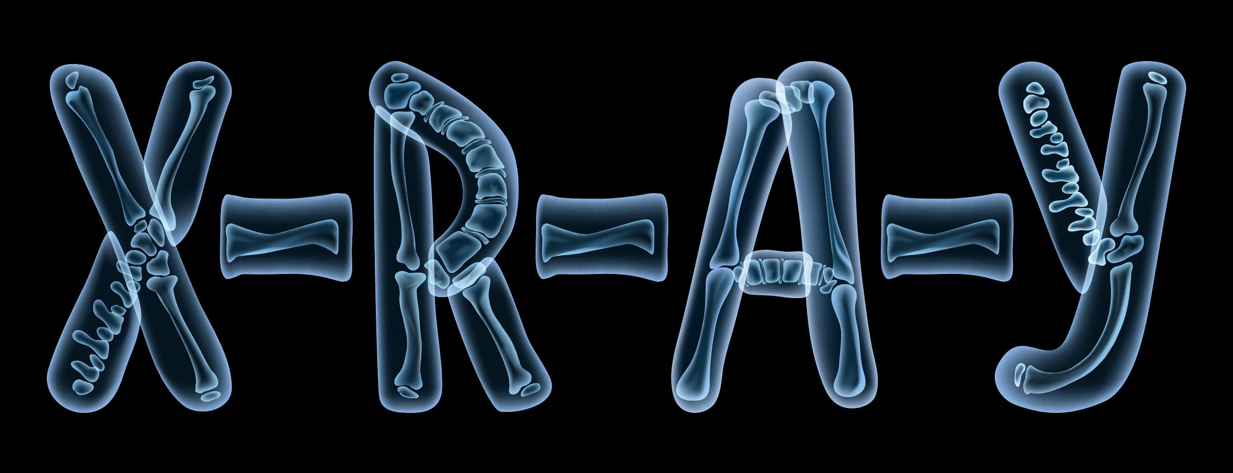 دليلك الشامل عن مكونات جهاز الأشعة السينية X Ray مجلتك Creative Nonfiction Genre Fiction Short Fiction