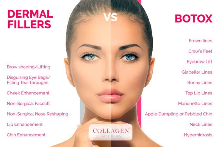 Suggest you arizona collagen facial injection