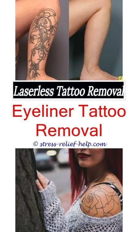 Black Henna Tattoo While Pregnant: Color Tattoo Removal Before And After.Tattoo Removal North