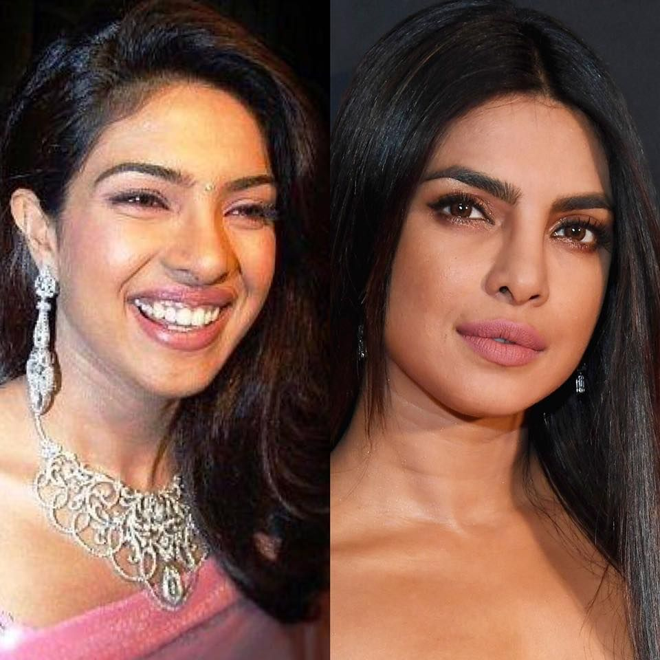 Control your nose shape with asian nose job celebrity