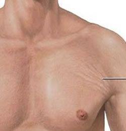 How to get rid of stretch marks naturally overnight - CareTricks com