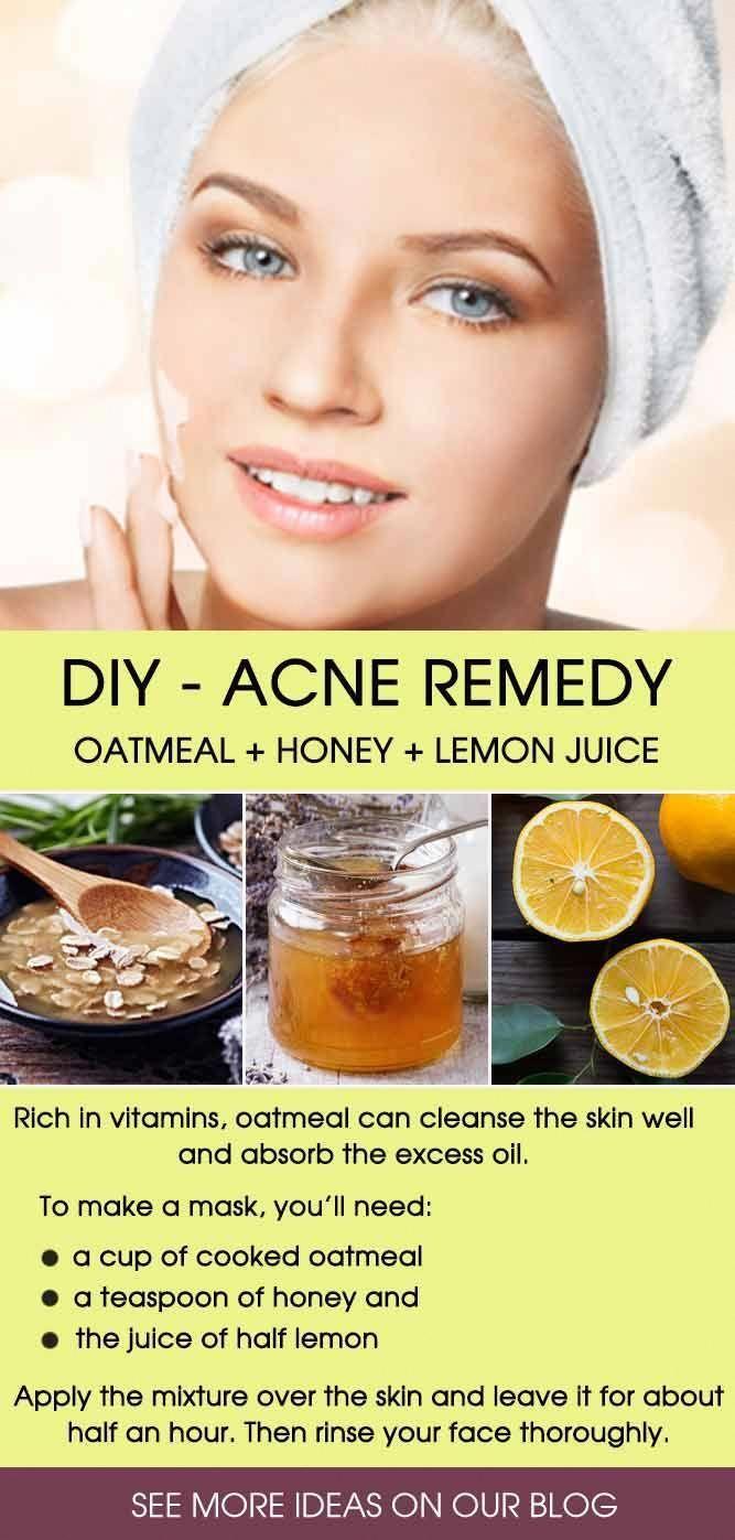 problem med acne