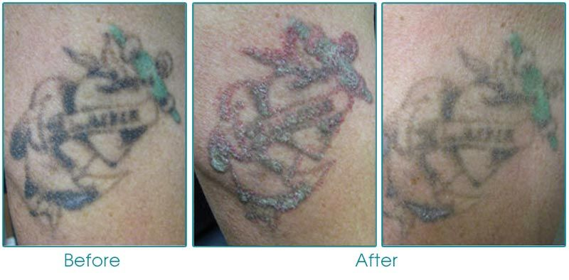 Laser Tattoo Removal www.travisshawmd.com Visit our website or ...