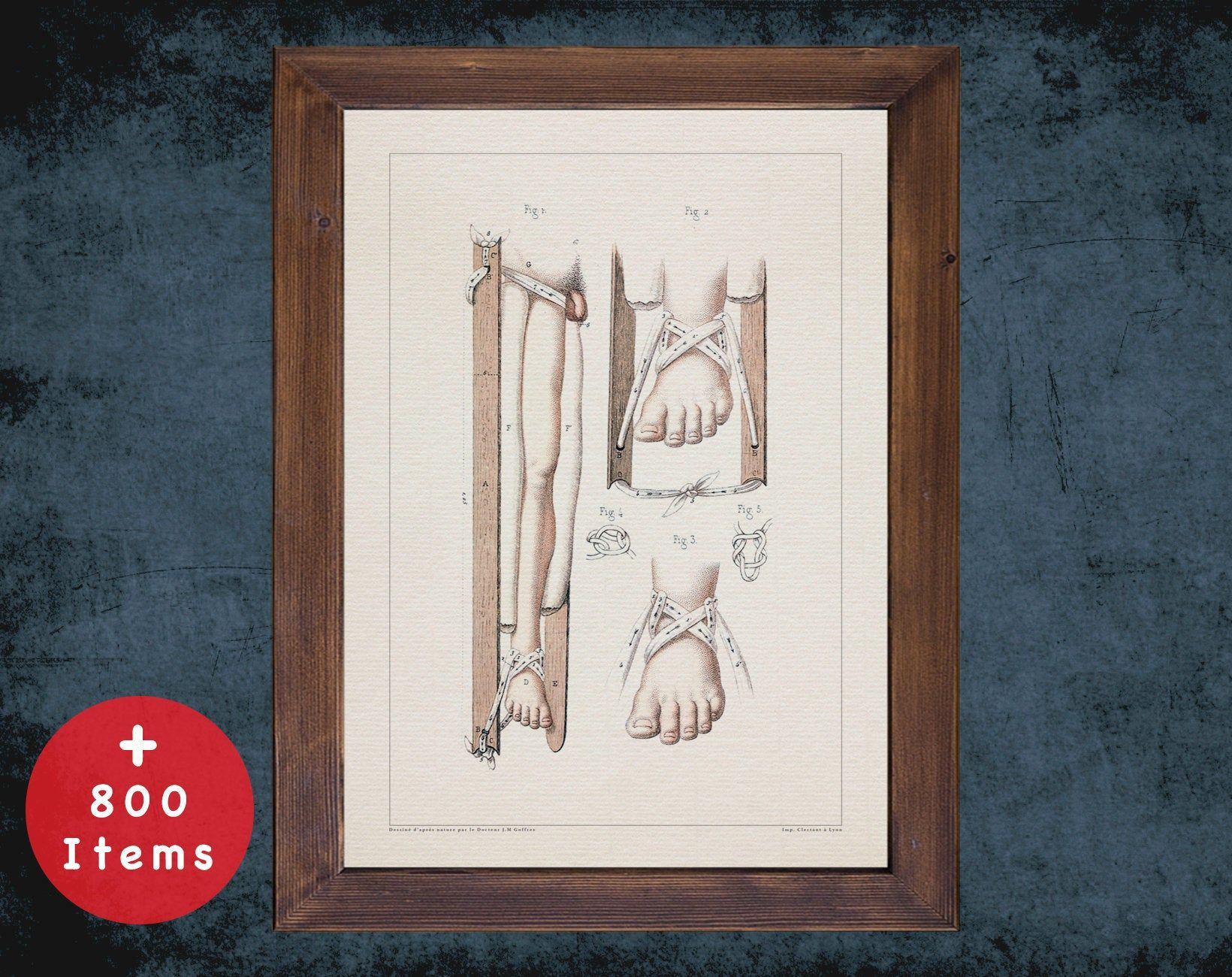 ANKLE FOOT ORTHOSIS anatomy art print for medical student gift, Nurse and Nursing doctor office decor #medicalstudents