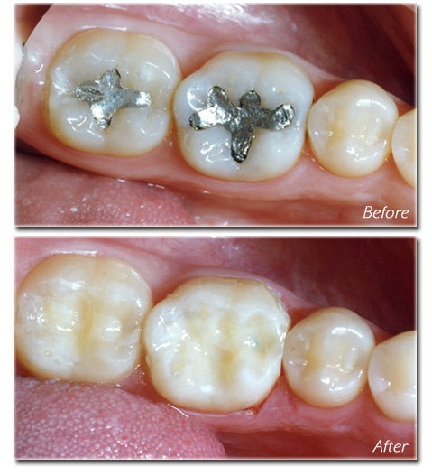 Getting Your Metal Fillings Replaced Is Very Important Metal Fillings Are A Source Of Immune Problems In Almost Eve Amalgam Fillings Dental Fillings Dentistry
