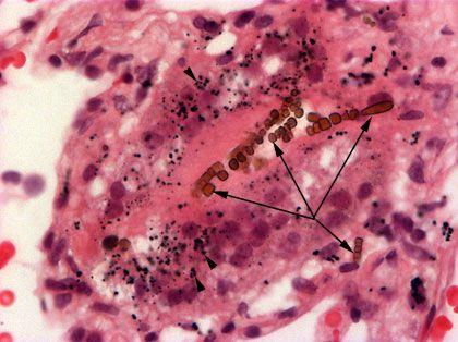 Asbestos Fibers In Lungs : What is asbestosis asbestos and mesothelioma