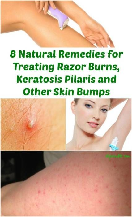 8 Natural Remedies for Treating Razor Burns, Keratosis Pilaris and Other Skin Bumps