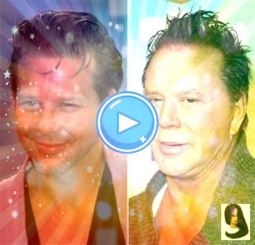 after forehead before after forehead 10 Celeb Plastic Surgery Disasters Part AxlRosePlasticSurgeryBeforeandAfter Mickey Rourke Bad Plastic Surgery 22 Most Shocking Celebr...